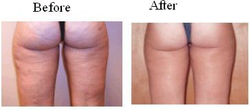 Before and After Mesotherapy at Taylor Medical Group