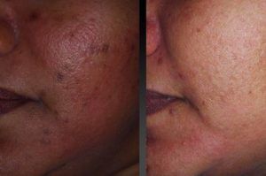 Glutathione Skin Lightening IV Injection Therapy | TAYLOR